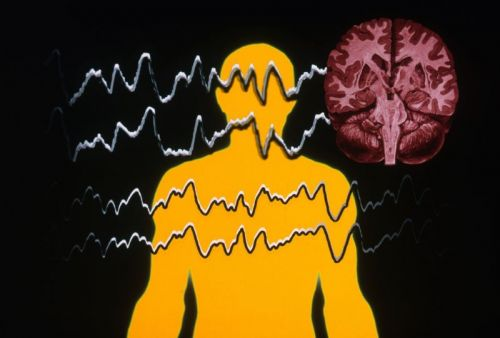 Implantable brain device could stop epileptic seizures in their tracks
