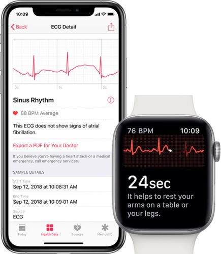WatchOS 5.1.2 Will Enable ECG App on Apple Watch Series 4