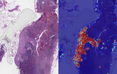 Google AI claims 99% accuracy in metastatic breast cancer detection