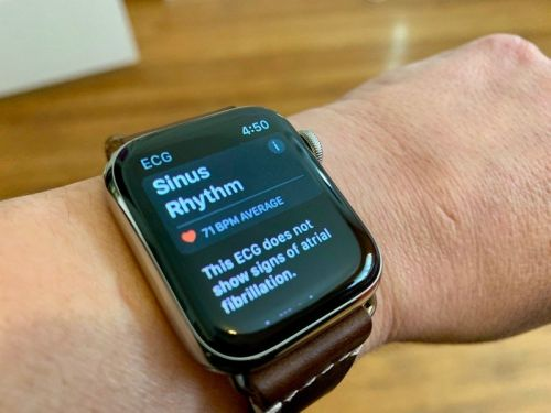 The Apple Watch ECG feature is likely coming to Brazil and Japan next