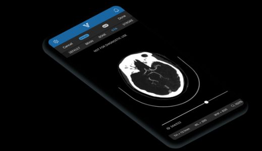 Kleiner Perkins and GV invest $21 million in AI health care startup Viz.ai