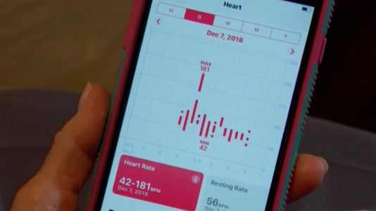 Apple Watch detects A-fib in Texas woman, doctor says it greatly expedited diagnosis