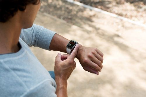 Apple survey hints at blood glucose monitoring for next Apple Watch