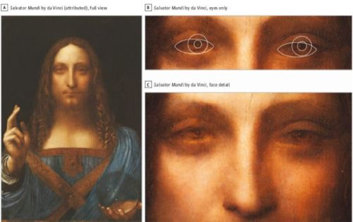 Da Vinci's possible vision disorder may have influenced his art